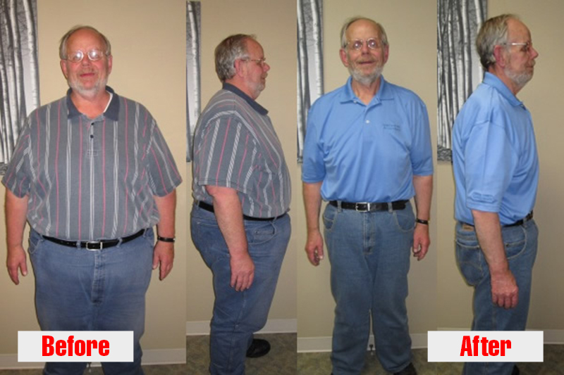 ChiroThin-Weight-Loss-Before-and-After_Bill