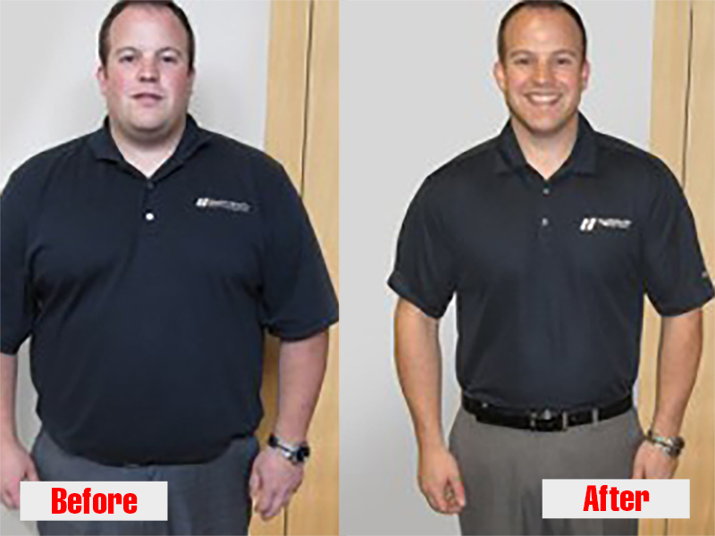 chirothin weight loss before after